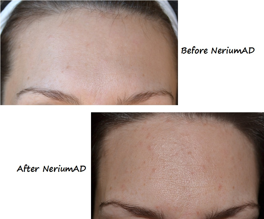 NeriumBeforeAfter