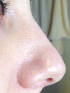 pores-blackheads
