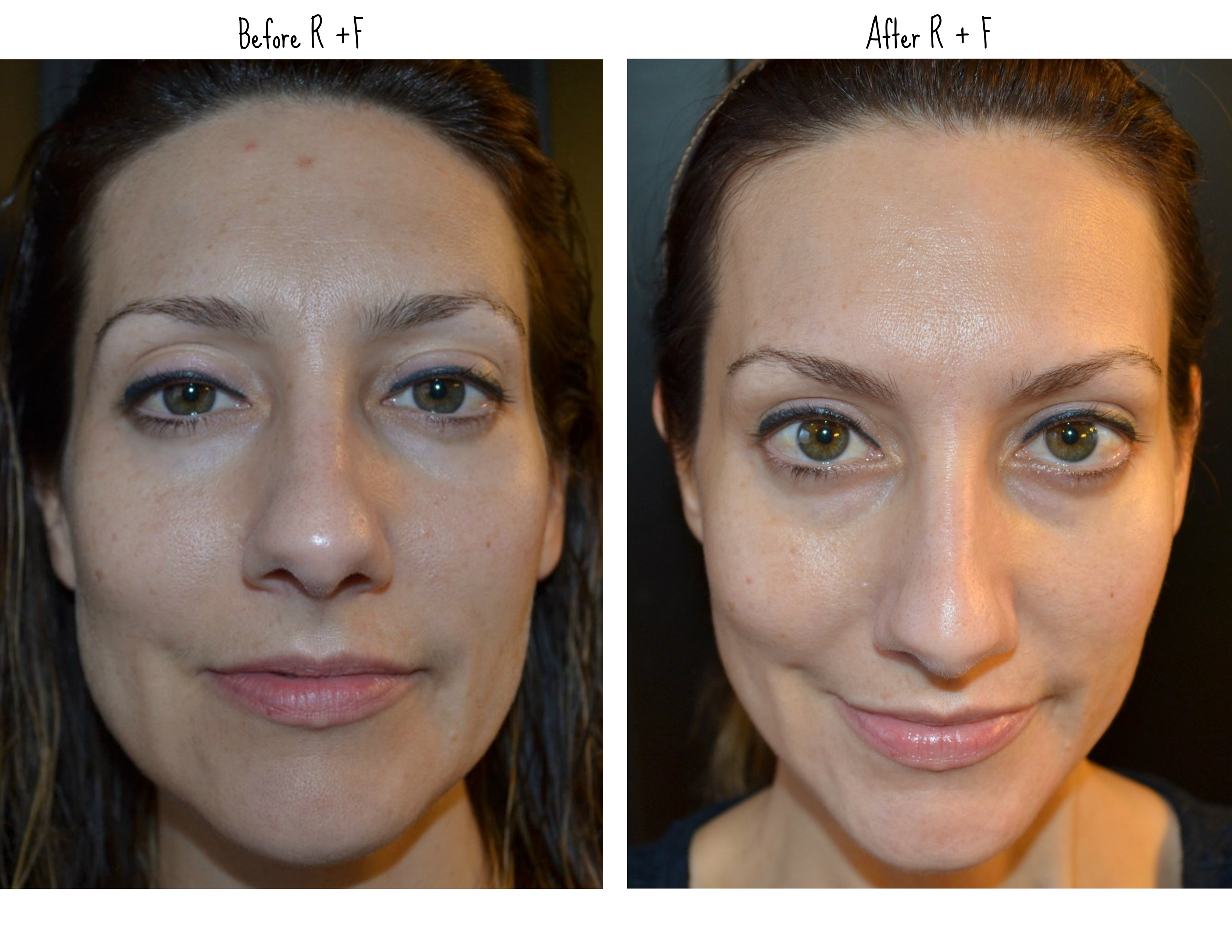 rodan-fields-before-after-photo