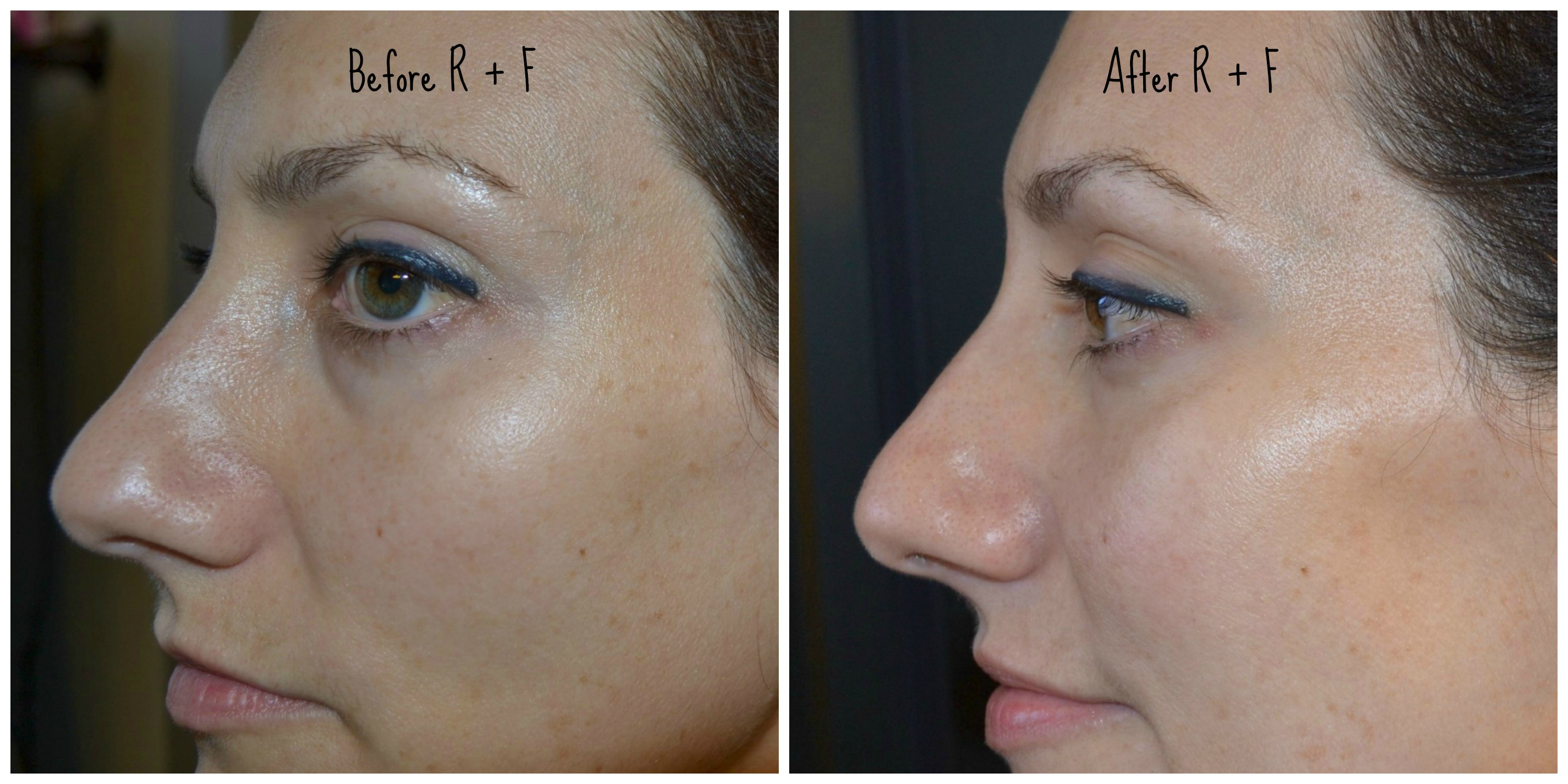rodan-fields-before-after-side