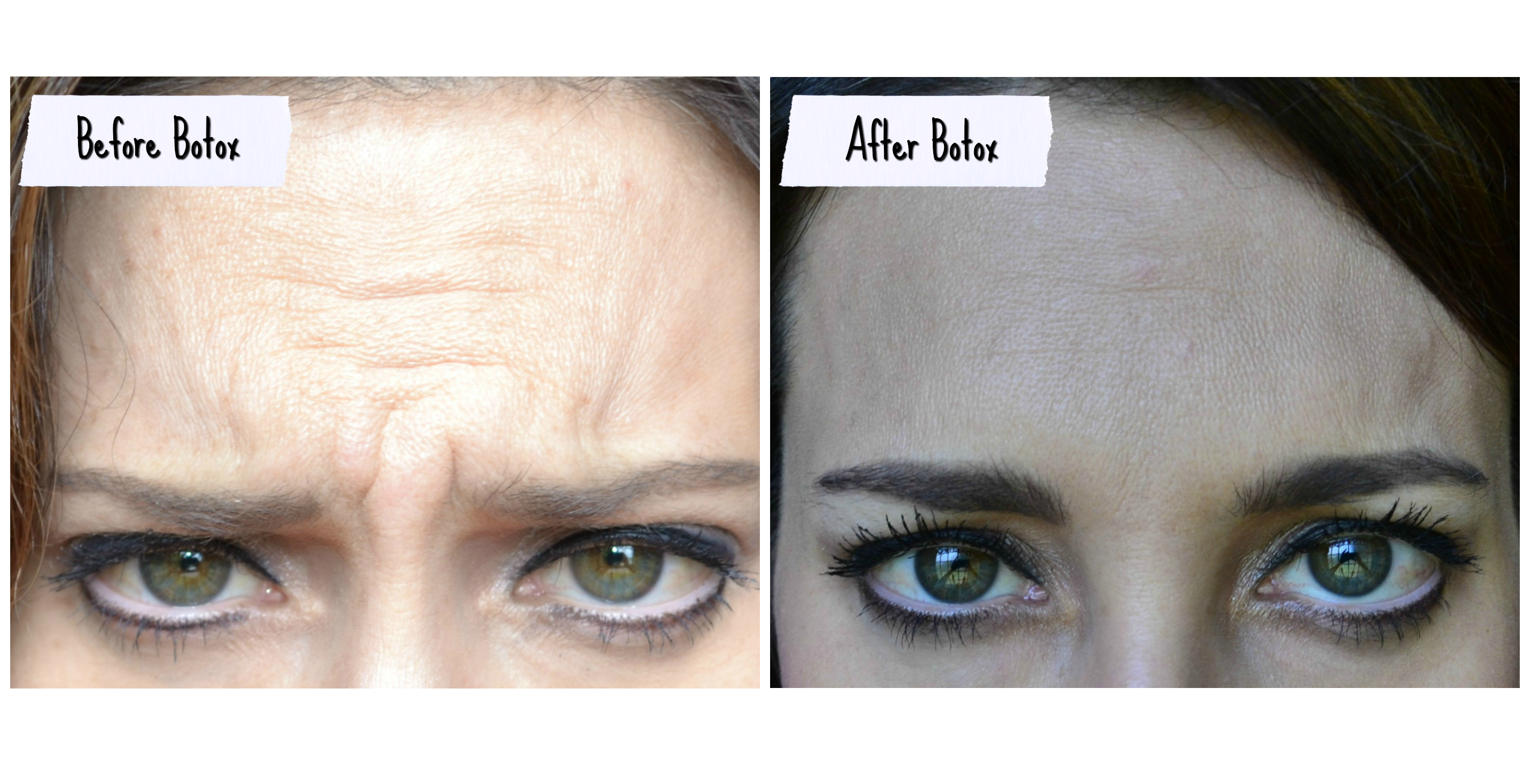 before-botox-injections
