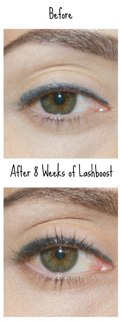 before-after-lashboost